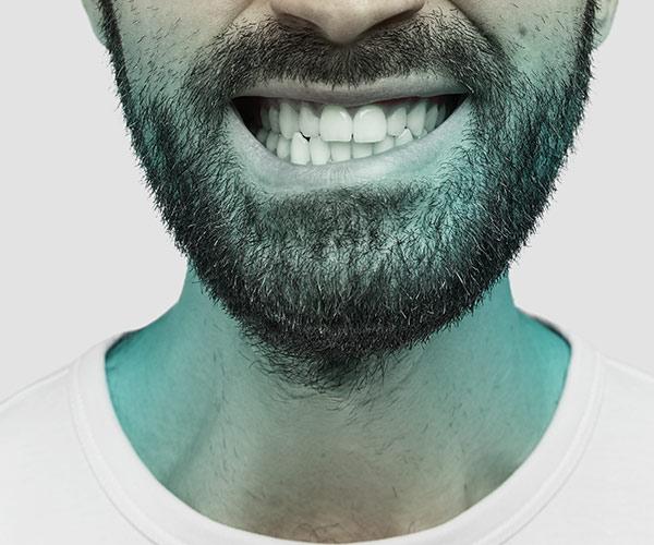 نصائح من دكتور أسنان في القاهرة للاعتناء بصحة الأسنان - توقف عن طحن الأسنان.